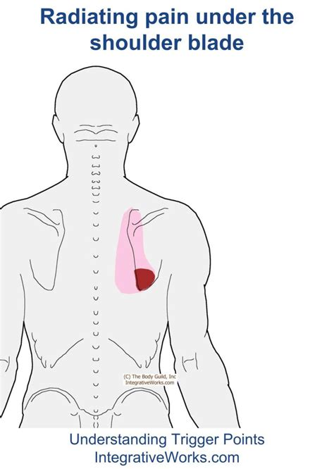 mid back pain left side radiating to front