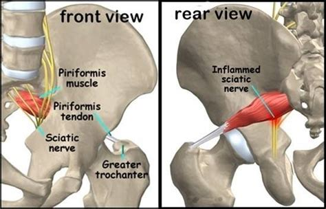 muscle spasm in hip socket replacement