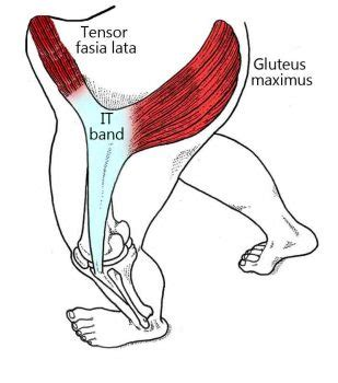muscle strain hip abductor pain tfl map