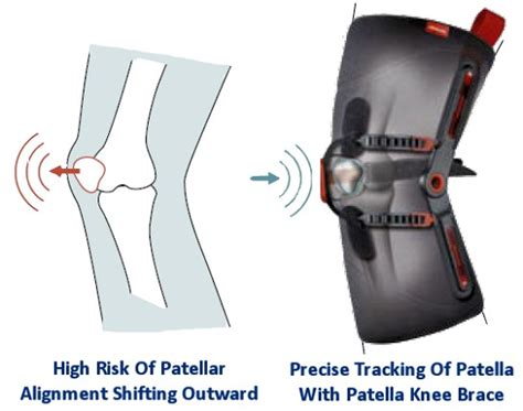 name of thigh hip flexor imageshack unloader knee brace