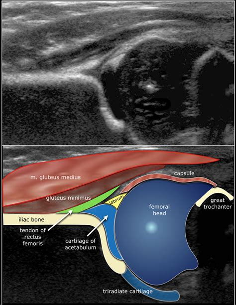 neonatal hip ultrasound anatomy of the abdominal aorta