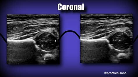 neonatal hip ultrasound protocol for appendicitis