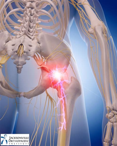 nerve pain in hip area