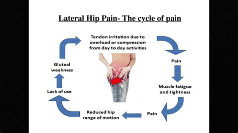 outer hip muscle pain