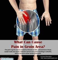 pain in bend of leg at groin lymph node