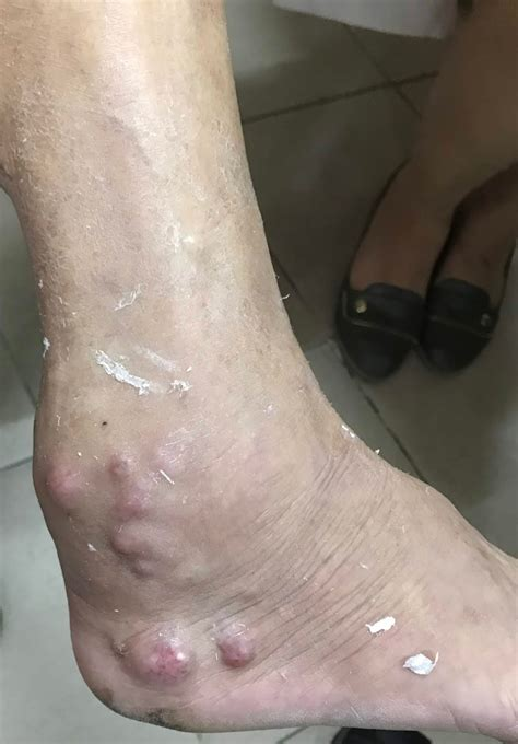 pain in bend of leg at groin lymphadenopathy ultrasound