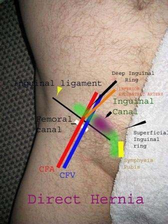 pain in bend of leg at groin lymphoma on ultrasound