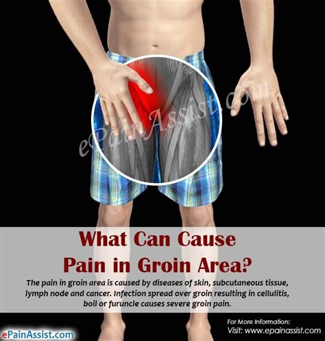 pain in crease of leg by groin lymphadenopathy treatments