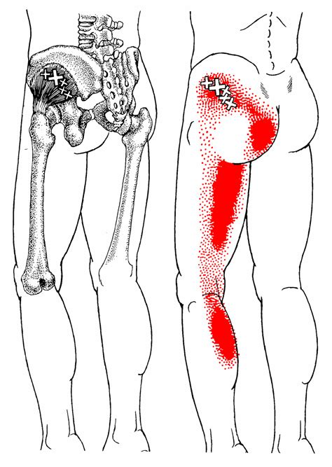 pain in hip flexor and gluteal muscles images white background
