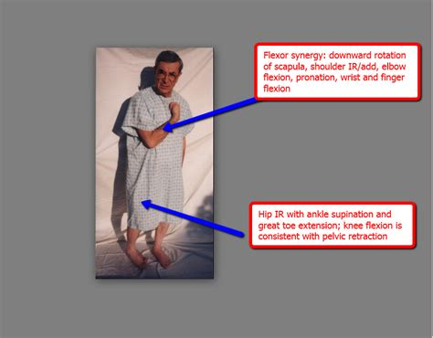 pain in hip flexors adduction of scapula synergistic meaning