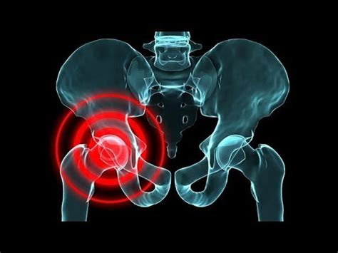 pain in left hip after bowel movement