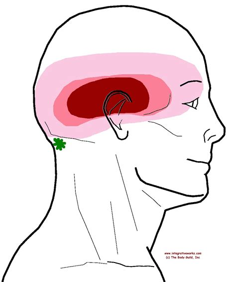 pain in left side of head neck and eye