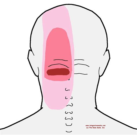 pain in lower left side of back of head