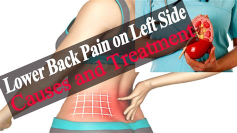 pain in my lower back hip area left side