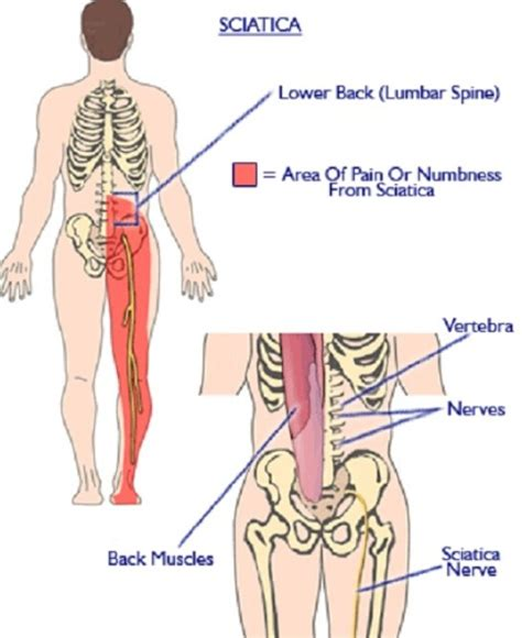pain in right side of abdomen back and leg