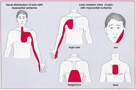 pain in right side of chest arm and jaw