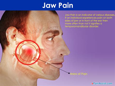 pain in right side of face neck and jaw