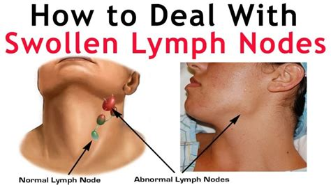 pain in right side of neck swollen lymph nodes