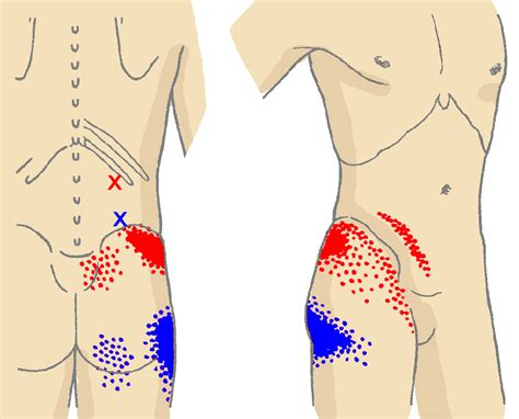 pain in upper right thigh and lower back