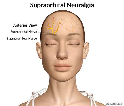 pain on left side of head over eye