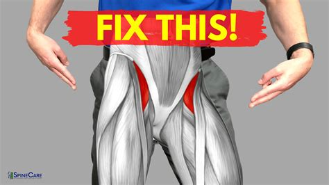 painful hip flexor muscle pictures for kids