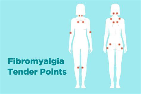 painful hip flexors fibromyalgia diagnosis tender points