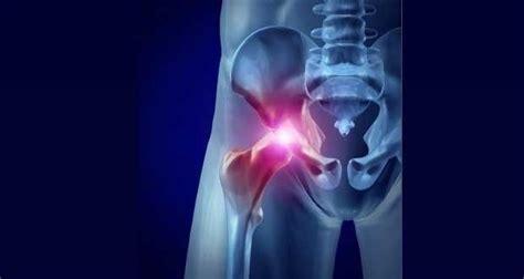 painful hip flexors fibromyalgia migraine and vision