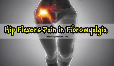 painful hip flexors fibromyalgia migraines