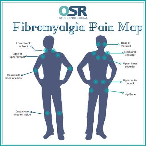 painful hip flexors fibromyalgia migraines in children