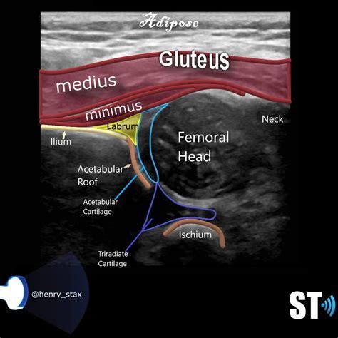 pediatric hip ultrasound images