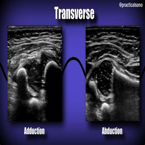pediatric hip ultrasound laxity