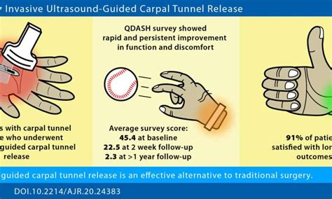 pediatric hip ultrasound protocol for carpal tunnel
