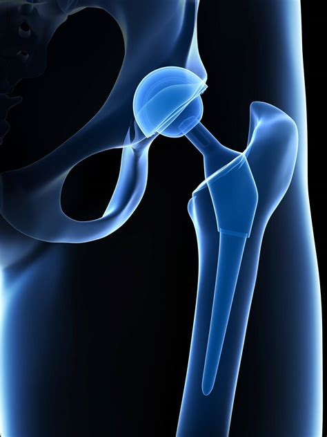 pictures of a hip replacement incision pictures