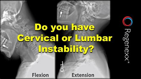 primary flexor of hip when knee extended x-ray back pain