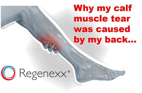pulled calf muscle and hip pain