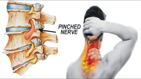 pulled hip flexor caused compressed nerve in neck