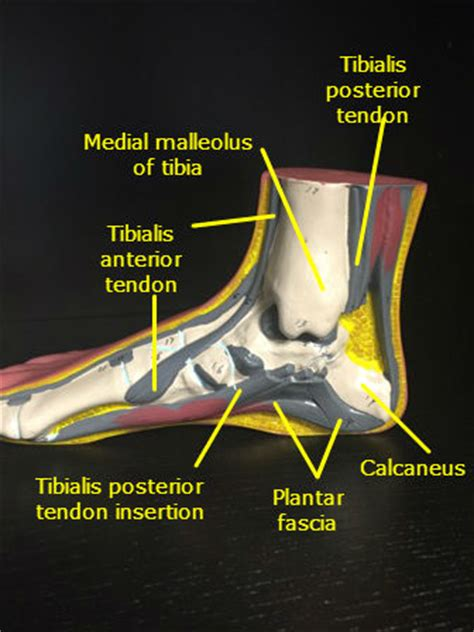 pulled tendon in foot arch