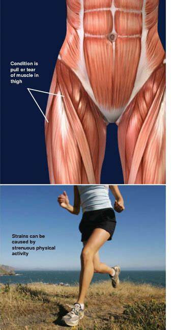 pulled upper leg and hip muscle pain