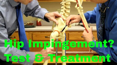 rehab exercises for hip impingement surgery what nerve causes