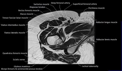 right hip muscles anatomy ct images of cochlea