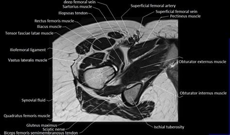 right hip muscles anatomy ct images of the brain