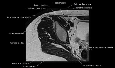 right hip muscles anatomy ct spine & rehab