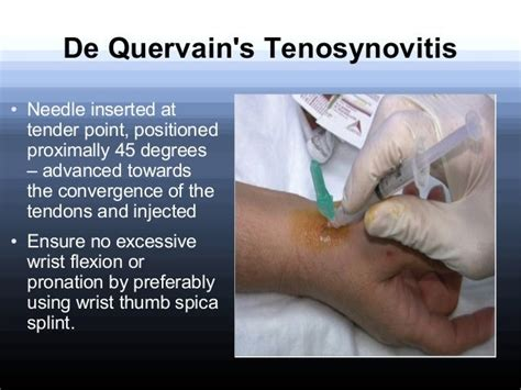 runners hip flexor pain after hip injection cortisone