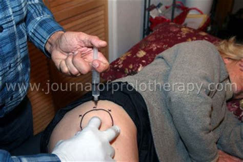 runners hip flexor pain after hip injection cortisone successful rate