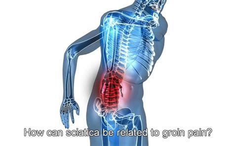 sciatic nerve pain in hip and groin