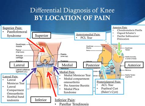 severe knee pain in front and back