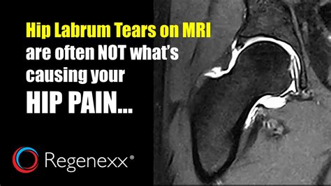sharp hip flexor pain after hip labrum repair doctors