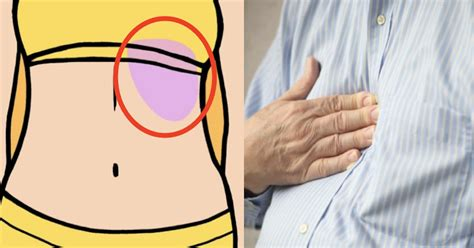 sharp shooting pain on left side of stomach under ribs