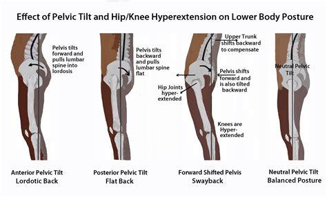 short hip flexor posterior tilt of pelvis and tighter