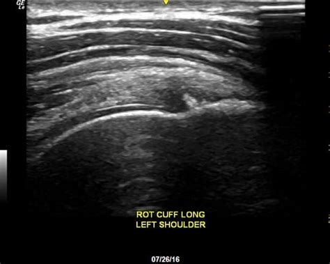 shoulder ultrasound protocol